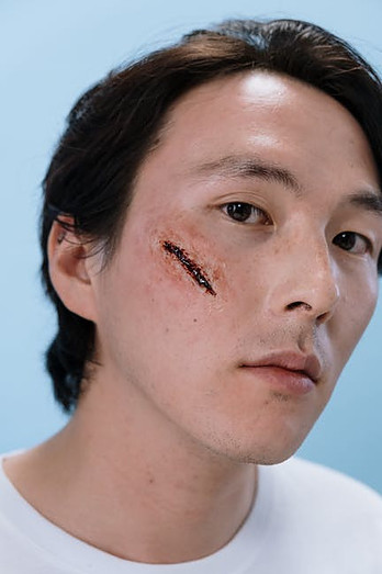 Is the Scar a Proof for Life After Death?